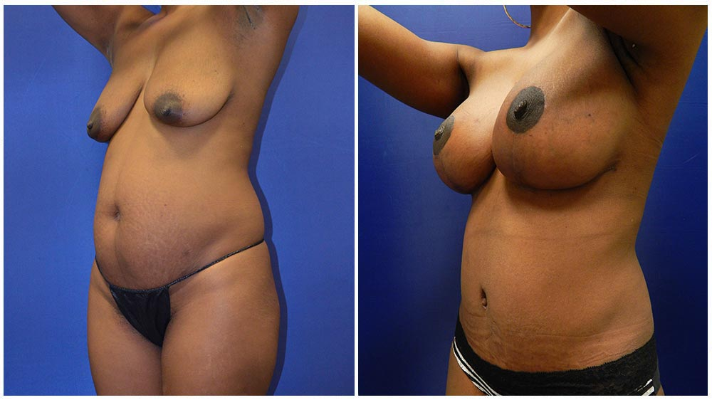 Fat Transfer Breast Augmentation Patient (38 Years)
